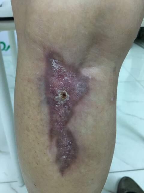 GANA PATCH (bed sore and burn dressing) > Clinic care > DEVICES